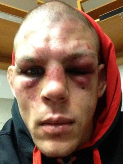 разбитое лицо после драки картинка внутри