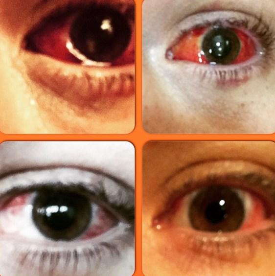 Глаз Тито Ортиса