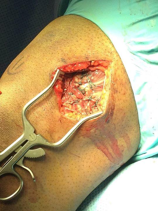 Операция на ноге Бобби Грина