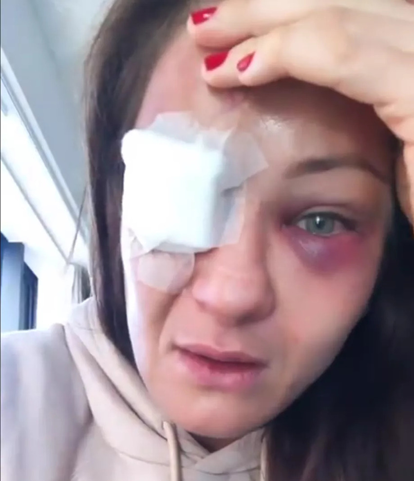Каролина Ковалькевич