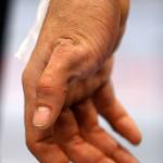 Травмированная рука Янси Медейроса