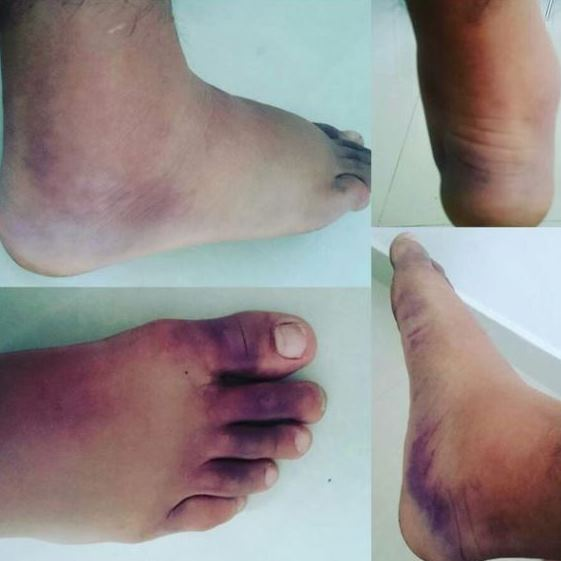Нога Яира Родригеса