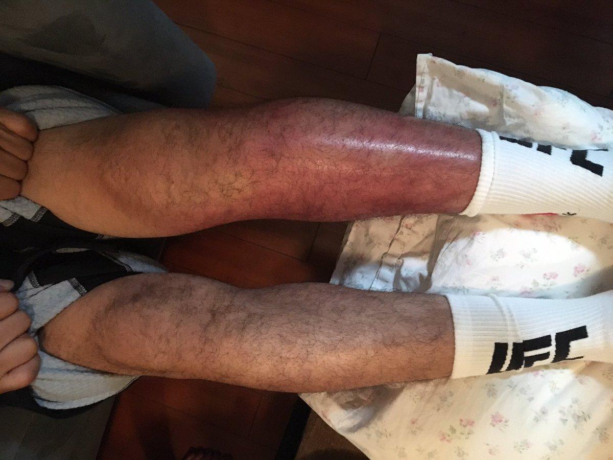 Ноги Мелендеса